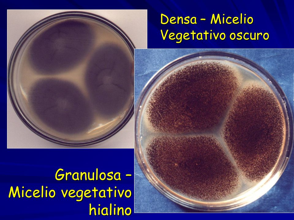 Granulosa – Micelio vegetativo hialino