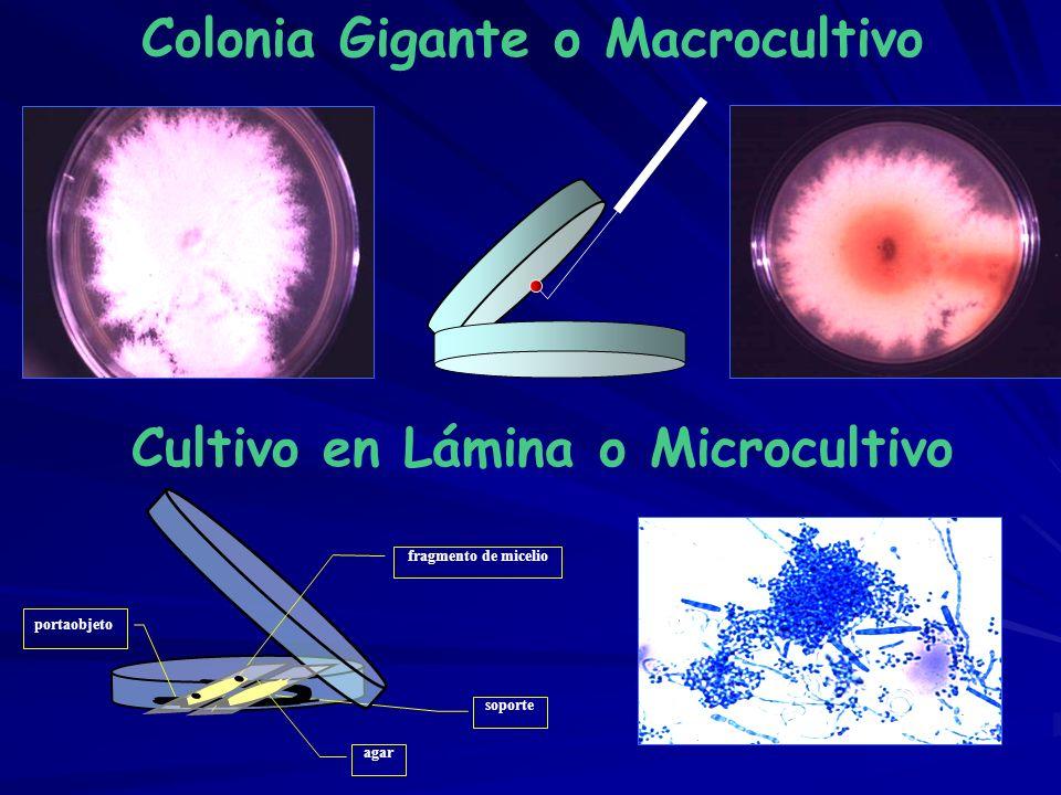 Colonia Gigante o Macrocultivo Cultivo en Lámina o Microcultivo