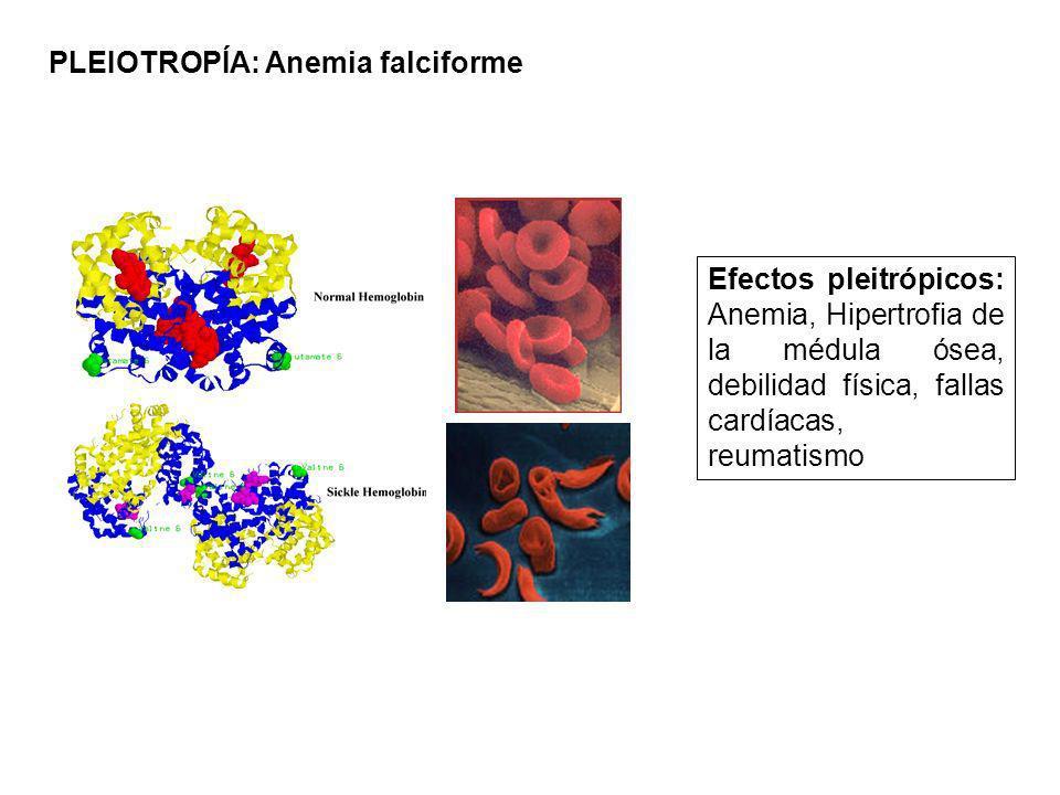 PLEIOTROPÍA: Anemia falciforme