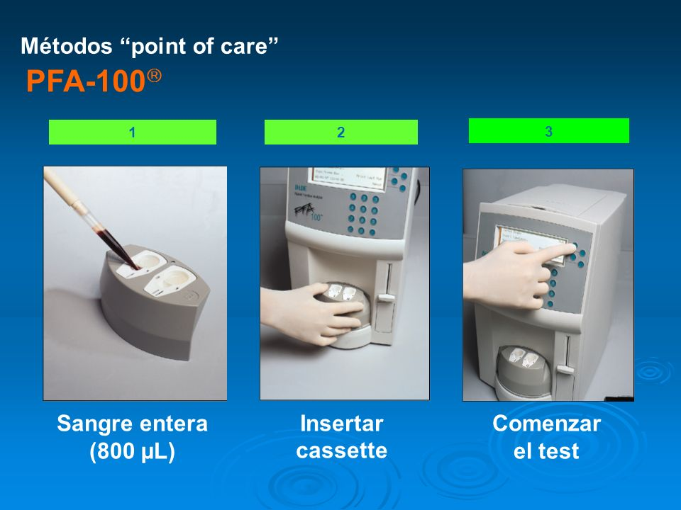 PFA-100 Métodos point of care Insertar cassette Comenzar el test
