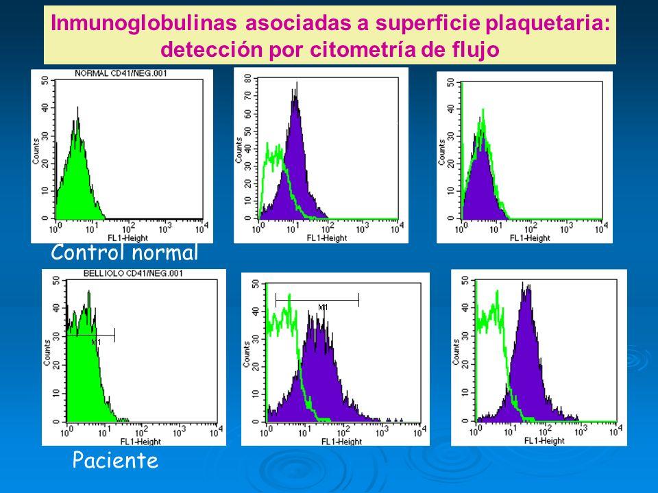 Inmunoglobulinas asociadas a superficie plaquetaria: