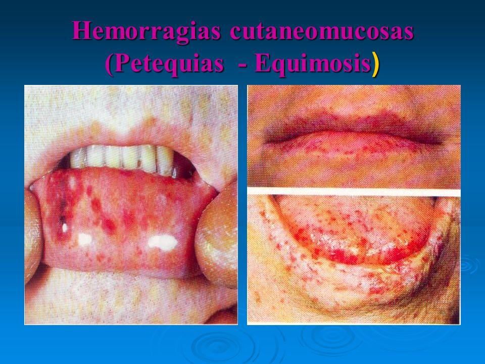 Hemorragias cutaneomucosas (Petequias - Equimosis)