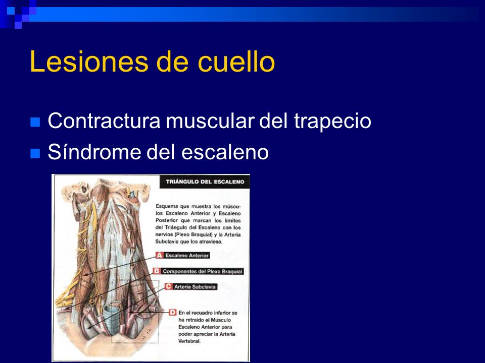 Lesiones de cuello Contractura muscular del trapecio