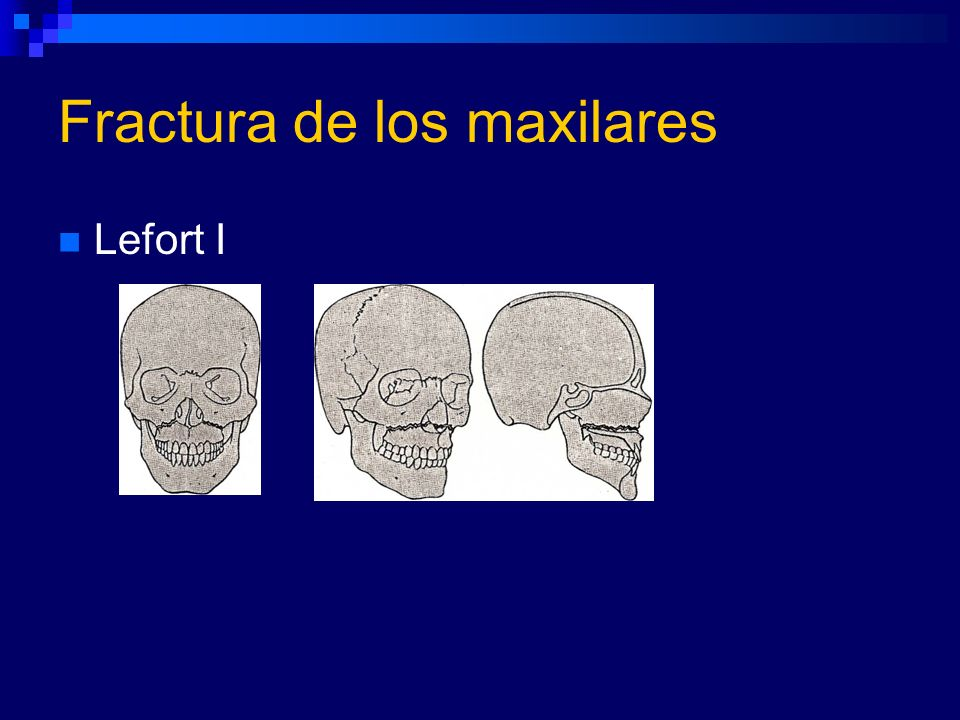 Fractura de los maxilares
