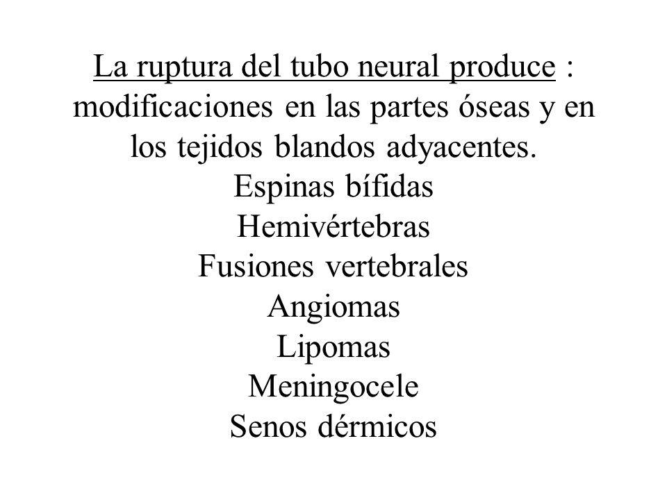 La ruptura del tubo neural produce : modificaciones en las partes óseas y en los tejidos blandos adyacentes.