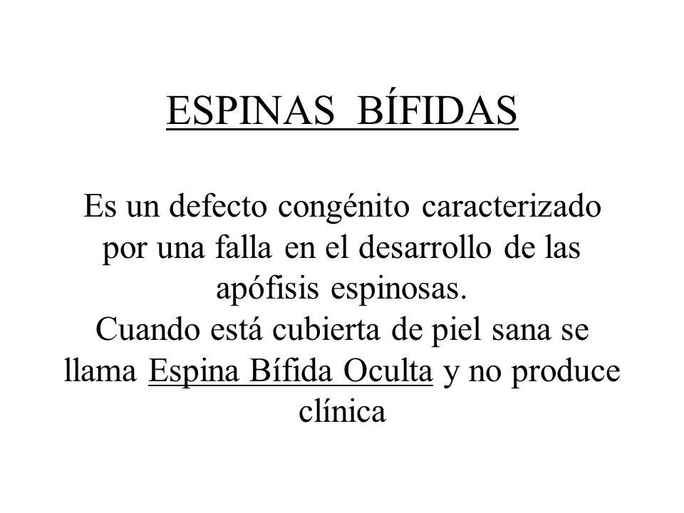 ESPINAS BÍFIDAS Es un defecto congénito caracterizado por una falla en el desarrollo de las apófisis espinosas.