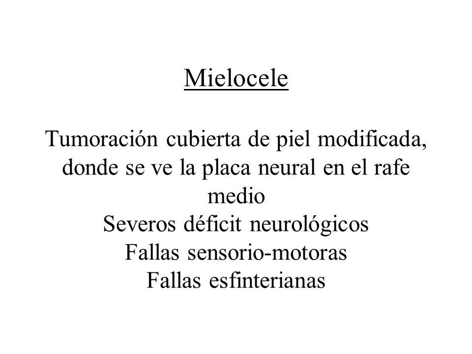 Mielocele Tumoración cubierta de piel modificada, donde se ve la placa neural en el rafe medio Severos déficit neurológicos Fallas sensorio-motoras Fallas esfinterianas