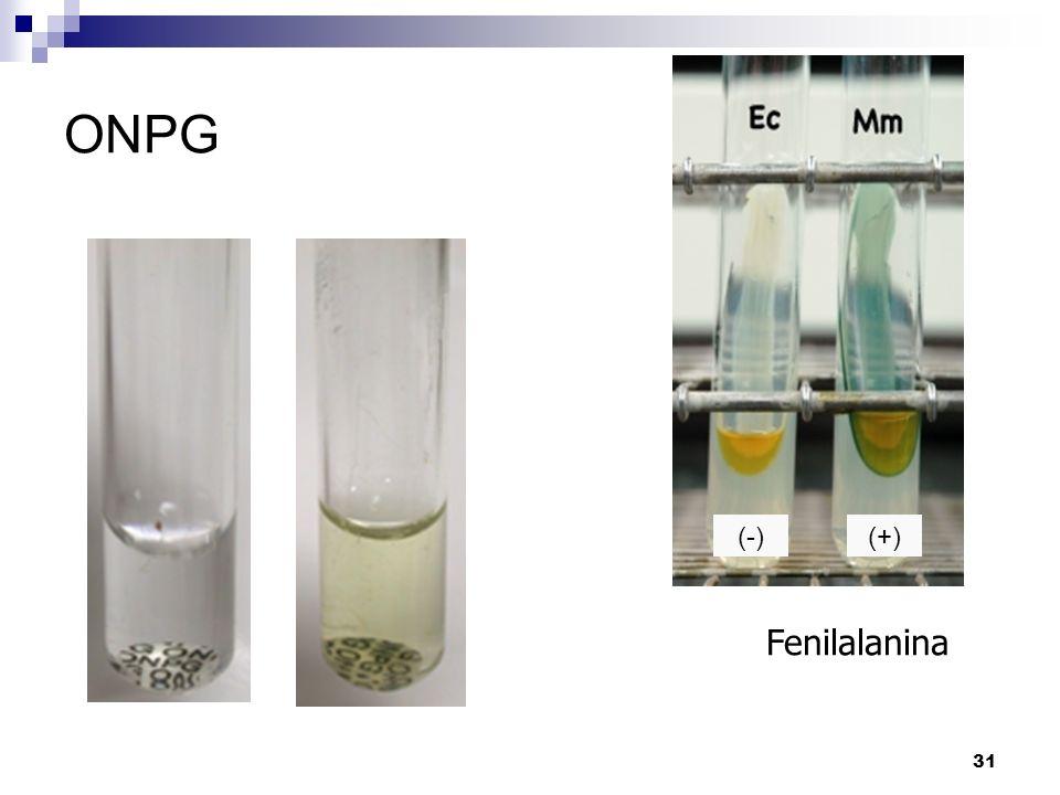 ONPG (-) (+) Fenilalanina