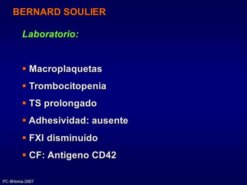 BERNARD SOULIER Laboratorio: Macroplaquetas Trombocitopenia