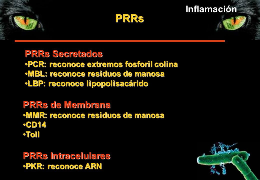 PRRs Inflamación PRRs Secretados PRRs de Membrana PRRs Intracelulares
