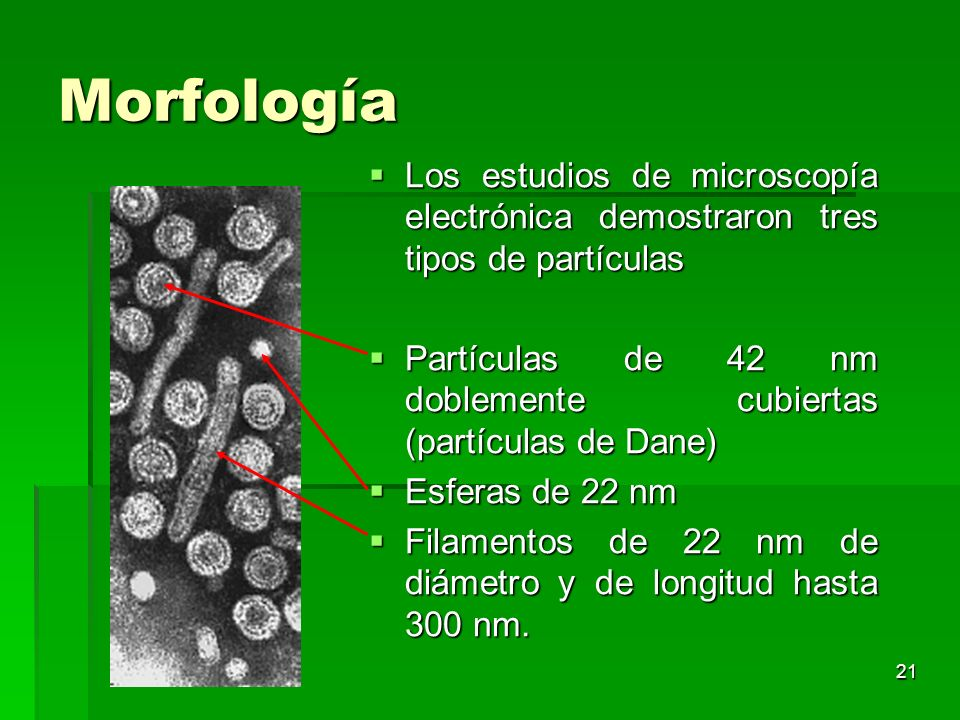Morfología Los estudios de microscopía electrónica demostraron tres tipos de partículas.