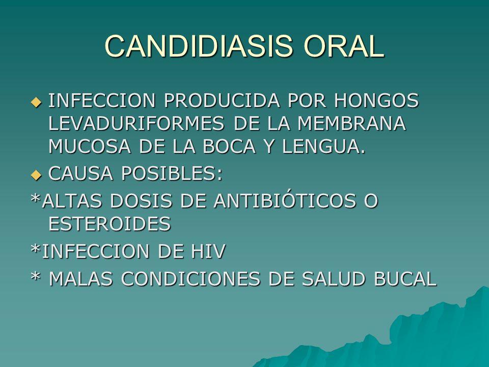 CANDIDIASIS ORAL INFECCION PRODUCIDA POR HONGOS LEVADURIFORMES DE LA MEMBRANA MUCOSA DE LA BOCA Y LENGUA.