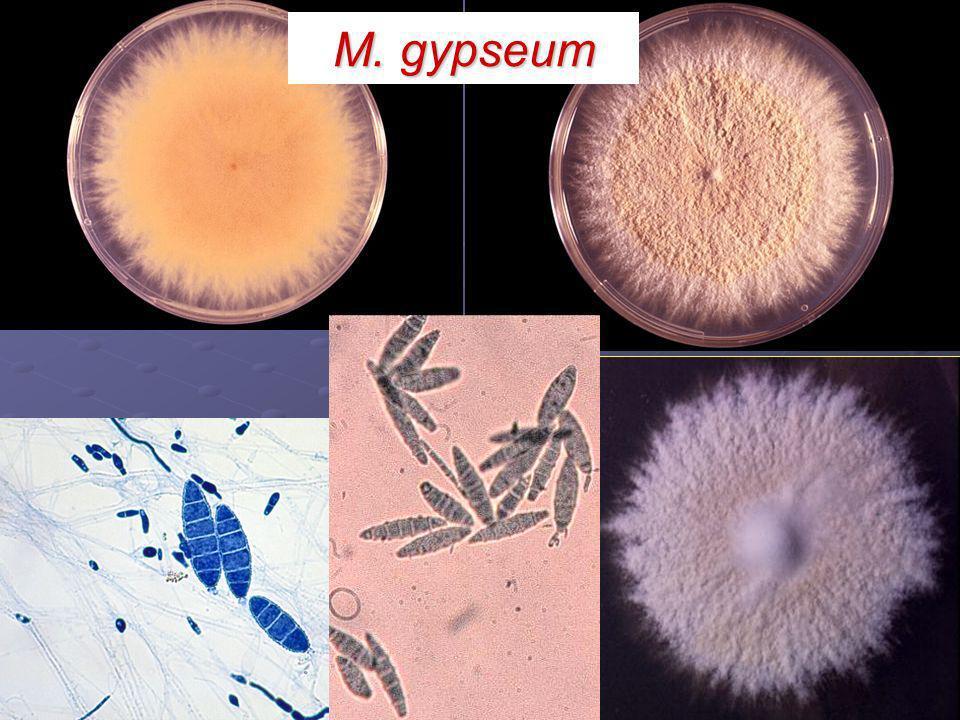 M. gypseum