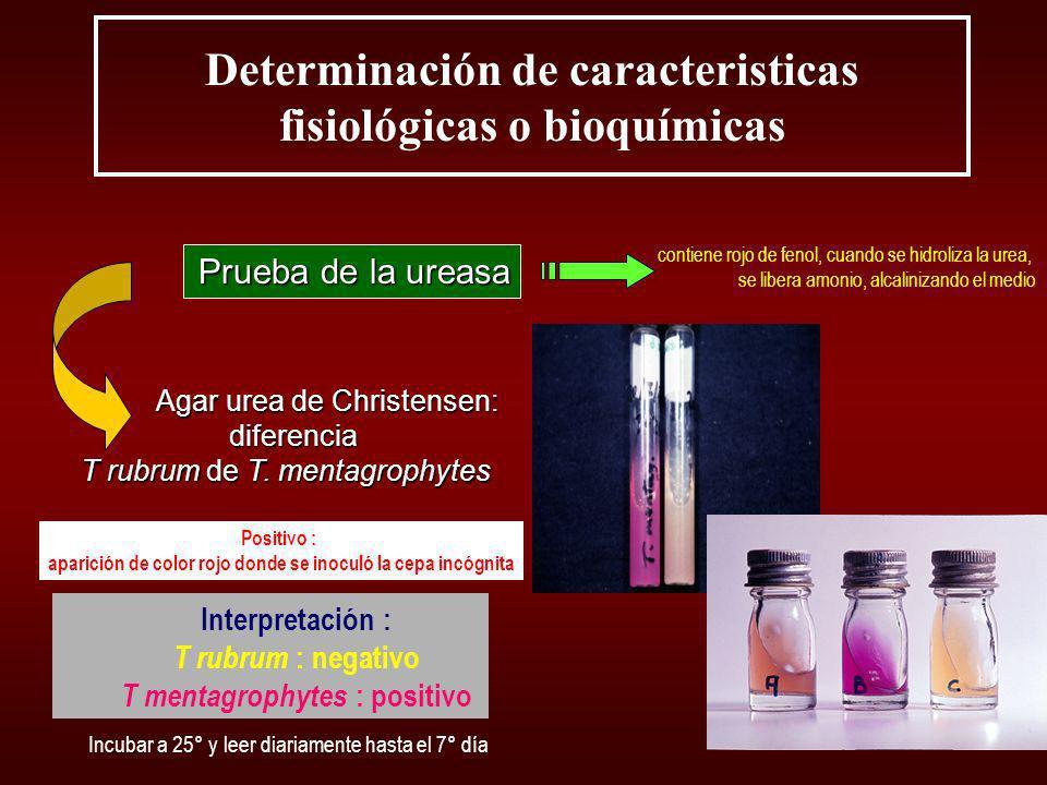 Determinación de caracteristicas fisiológicas o bioquímicas