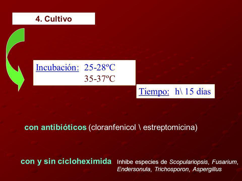 Incubación: 25-28ºC 35-37ºC Tiempo: h\ 15 días 4. Cultivo