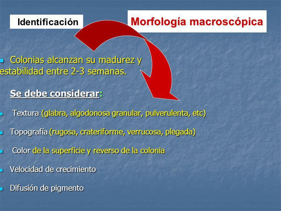 Morfología macroscópica