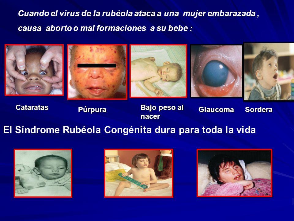 El Síndrome Rubéola Congénita dura para toda la vida