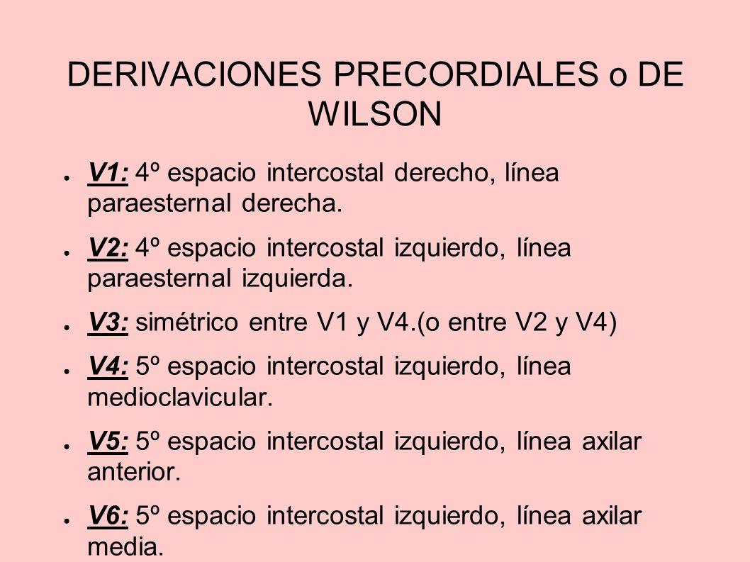 DERIVACIONES PRECORDIALES o DE WILSON