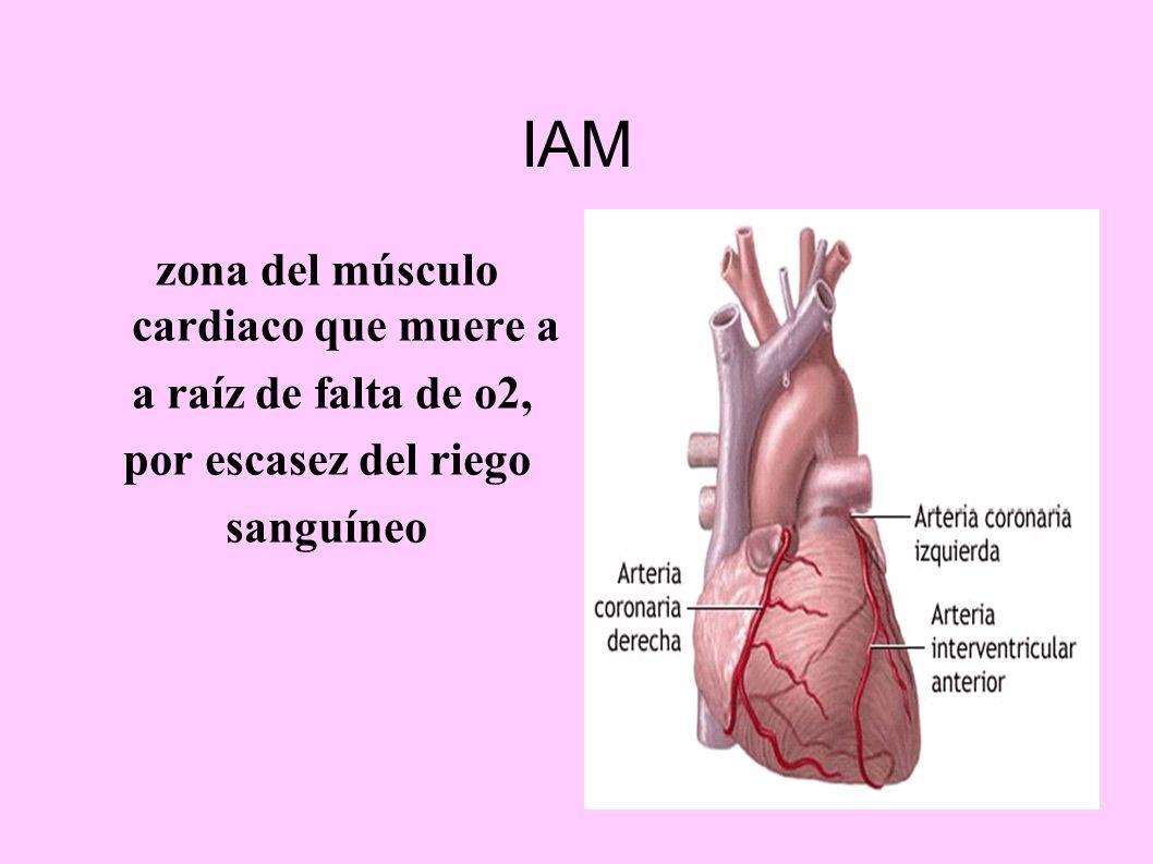 zona del músculo cardiaco que muere a