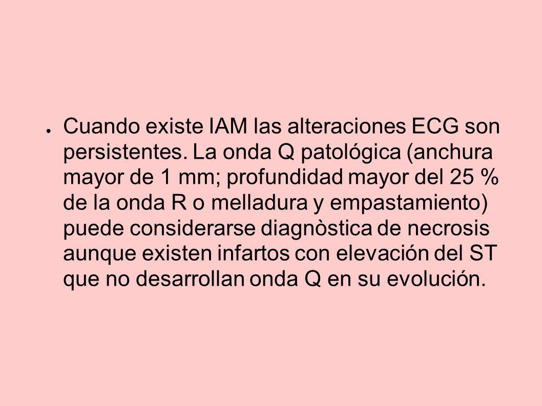 Cuando existe IAM las alteraciones ECG son persistentes