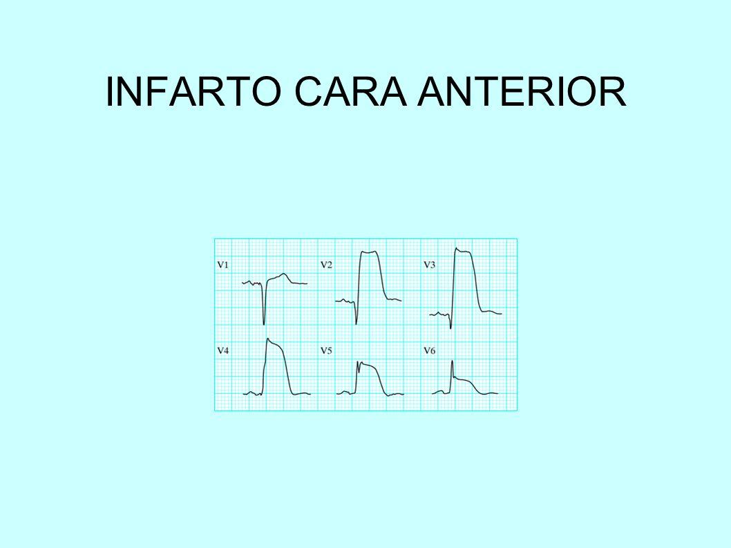 INFARTO CARA ANTERIOR