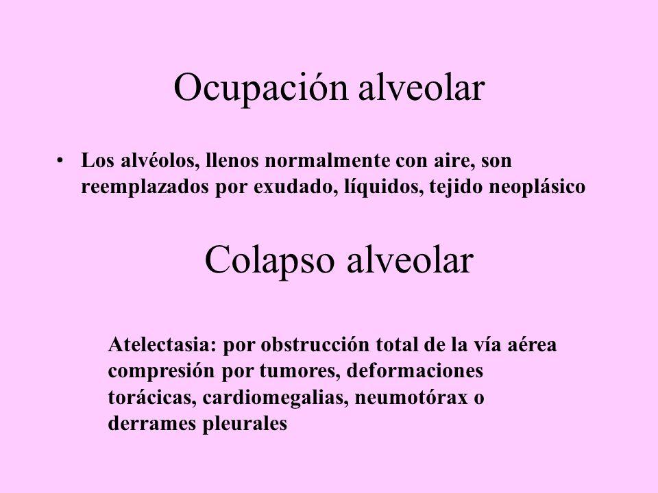 Ocupación alveolar Colapso alveolar