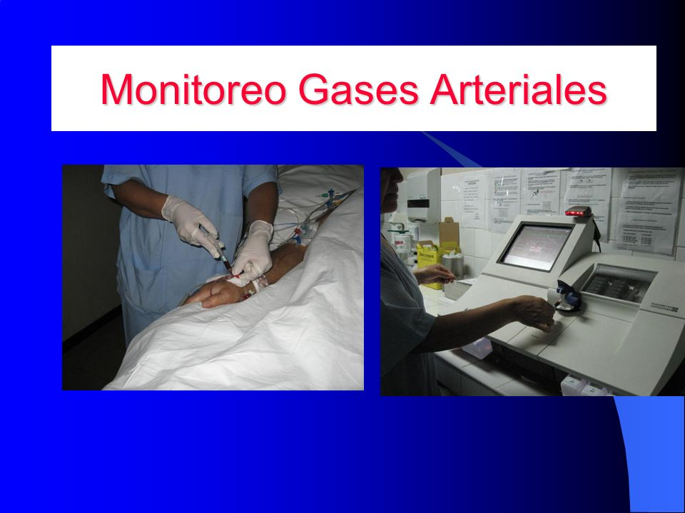 Monitoreo Gases Arteriales