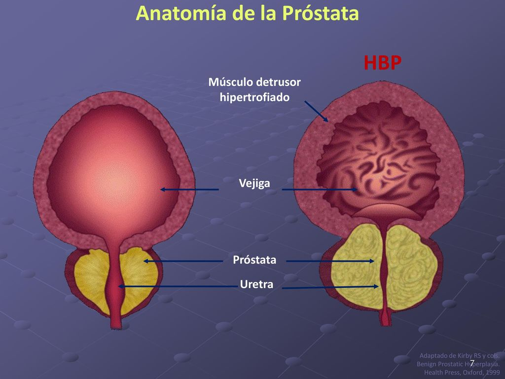 Lujo Lóbulos Anatomía De Próstata Colección de Imágenes - Anatomía ...