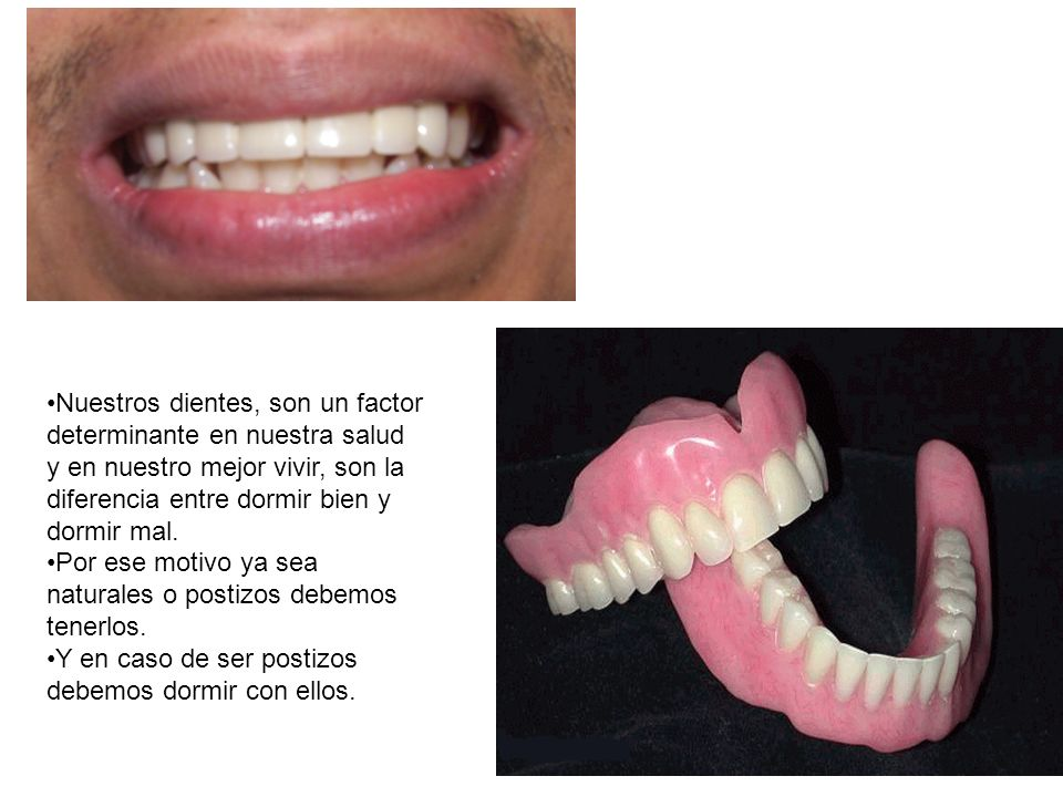 Nuestros dientes, son un factor determinante en nuestra salud y en nuestro mejor vivir, son la diferencia entre dormir bien y dormir mal.