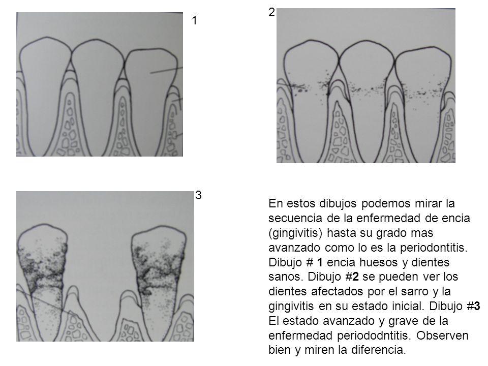2 1. 3. En estos dibujos podemos mirar la secuencia de la enfermedad de encia (gingivitis) hasta su grado mas avanzado como lo es la periodontitis.
