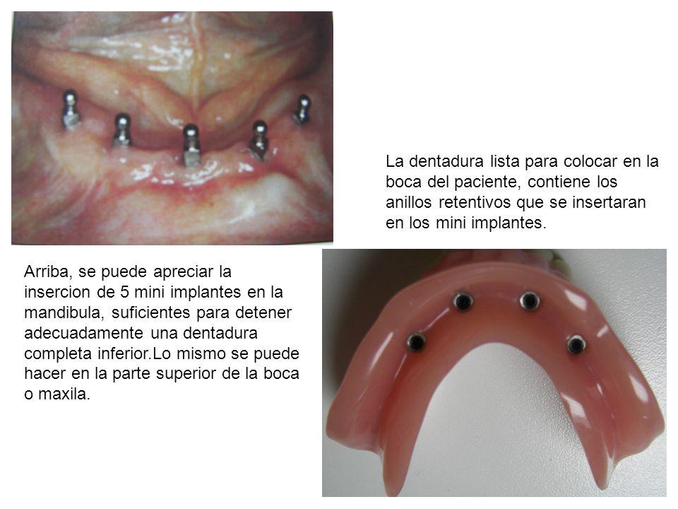 La dentadura lista para colocar en la boca del paciente, contiene los anillos retentivos que se insertaran en los mini implantes.