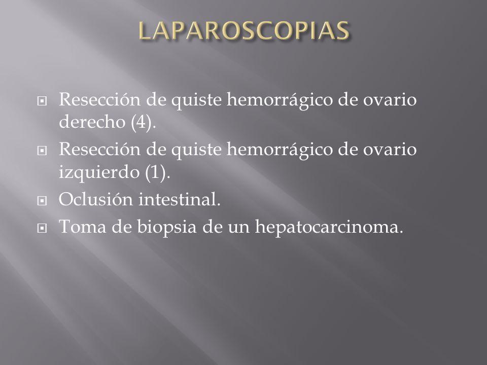 LAPAROSCOPIAS Resección de quiste hemorrágico de ovario derecho (4).