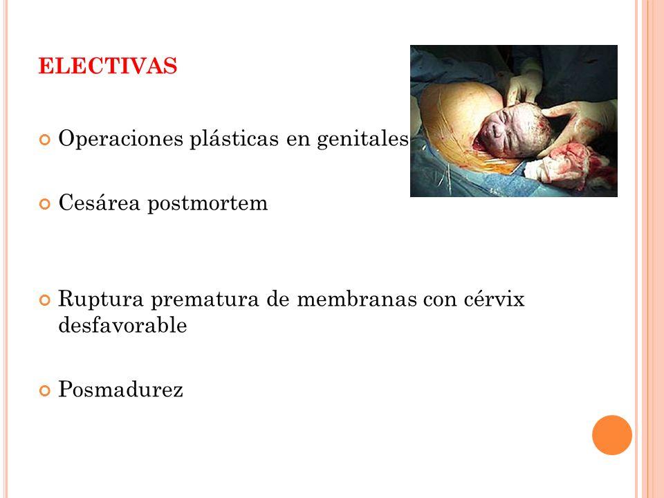 electivas Operaciones plásticas en genitales Cesárea postmortem