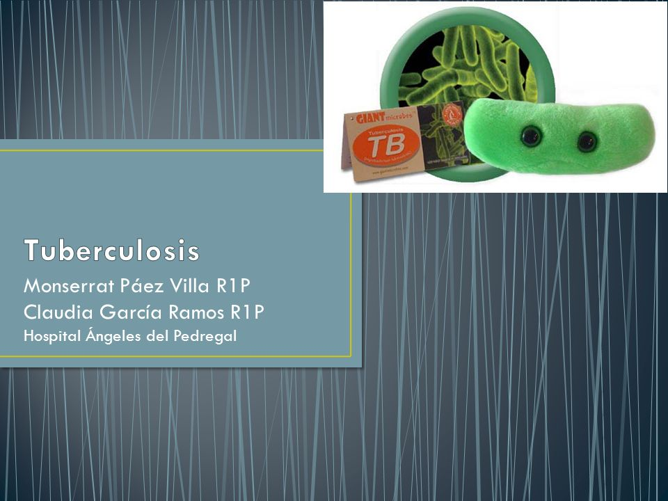Tuberculosis Monserrat Páez Villa R1P Claudia García Ramos R1P