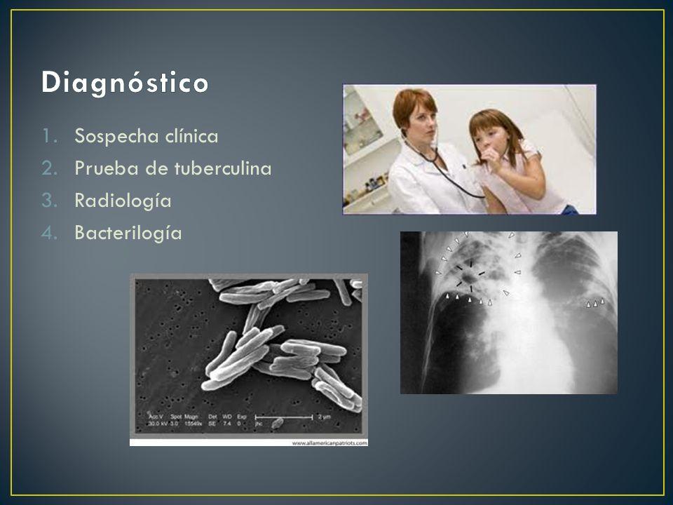 Diagnóstico Sospecha clínica Prueba de tuberculina Radiología