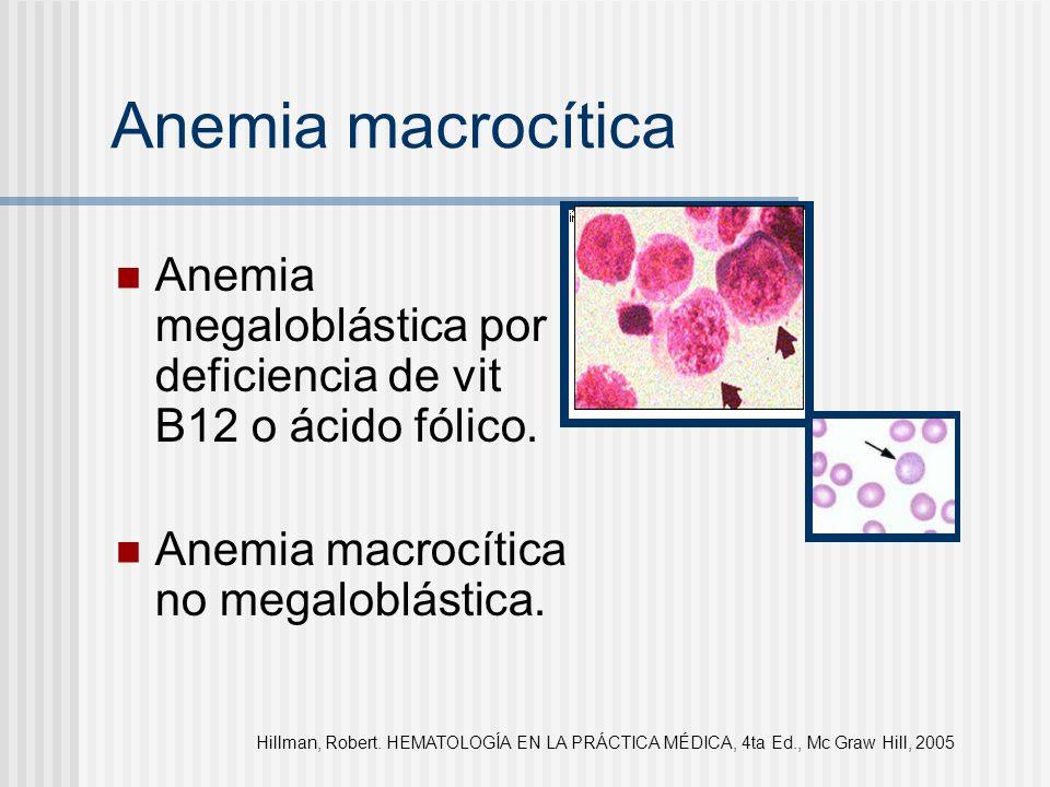 Anemia macrocítica Anemia megaloblástica por deficiencia de vit B12 o ácido fólico. Anemia macrocítica no megaloblástica.