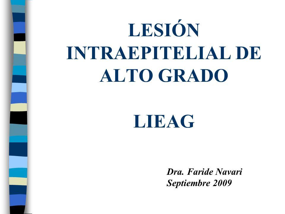 LESIÓN INTRAEPITELIAL DE ALTO GRADO LIEAG
