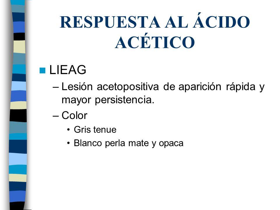 RESPUESTA AL ÁCIDO ACÉTICO
