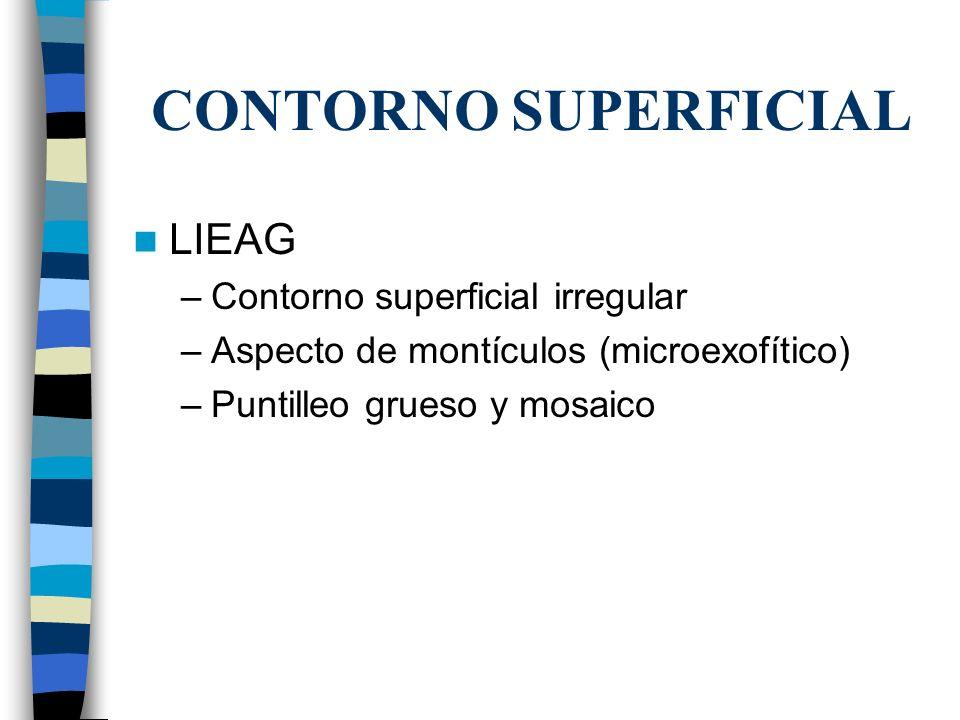 CONTORNO SUPERFICIAL LIEAG Contorno superficial irregular