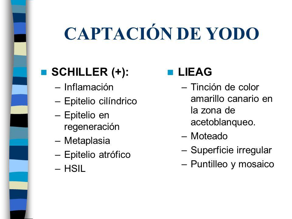 CAPTACIÓN DE YODO SCHILLER (+): LIEAG Inflamación Epitelio cilíndrico