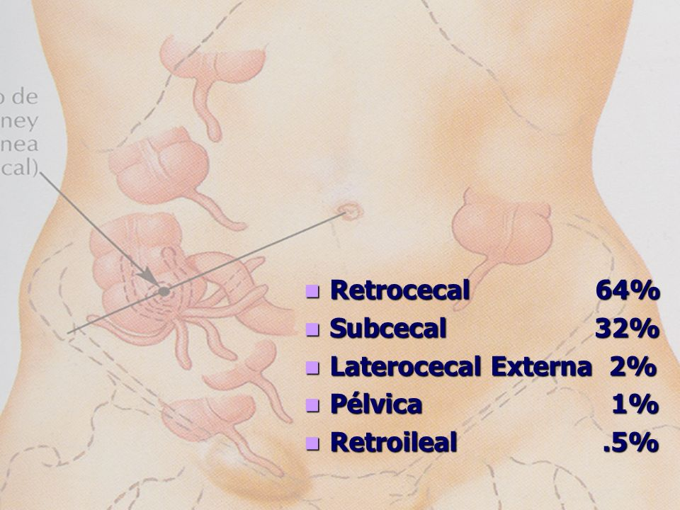 Retrocecal 64% Subcecal 32% Laterocecal Externa 2%