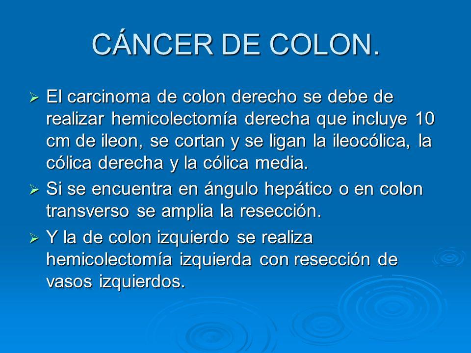 CÁNCER DE COLON.