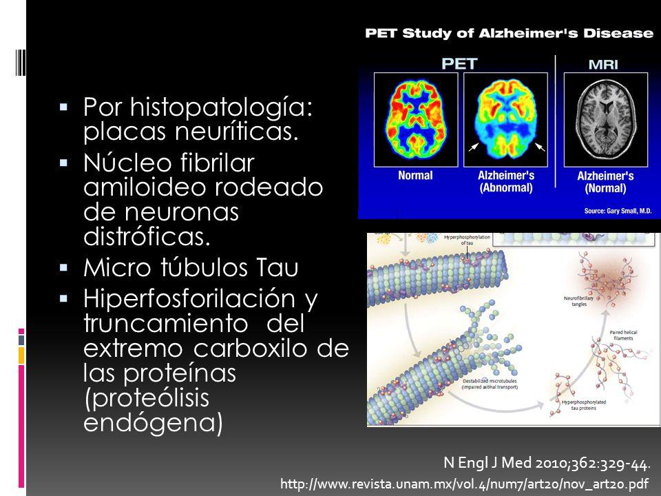 Por histopatología: placas neuríticas.
