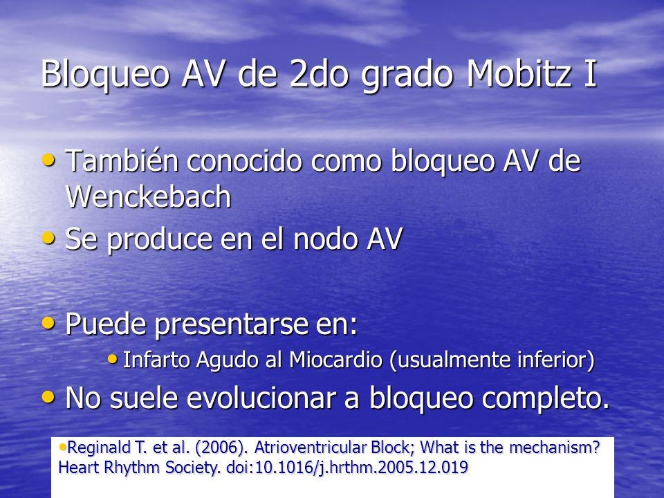 Bloqueo AV de 2do grado Mobitz I