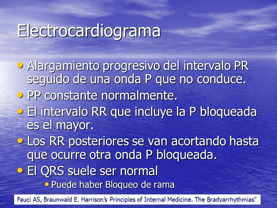 Electrocardiograma Alargamiento progresivo del intervalo PR seguido de una onda P que no conduce. PP constante normalmente.