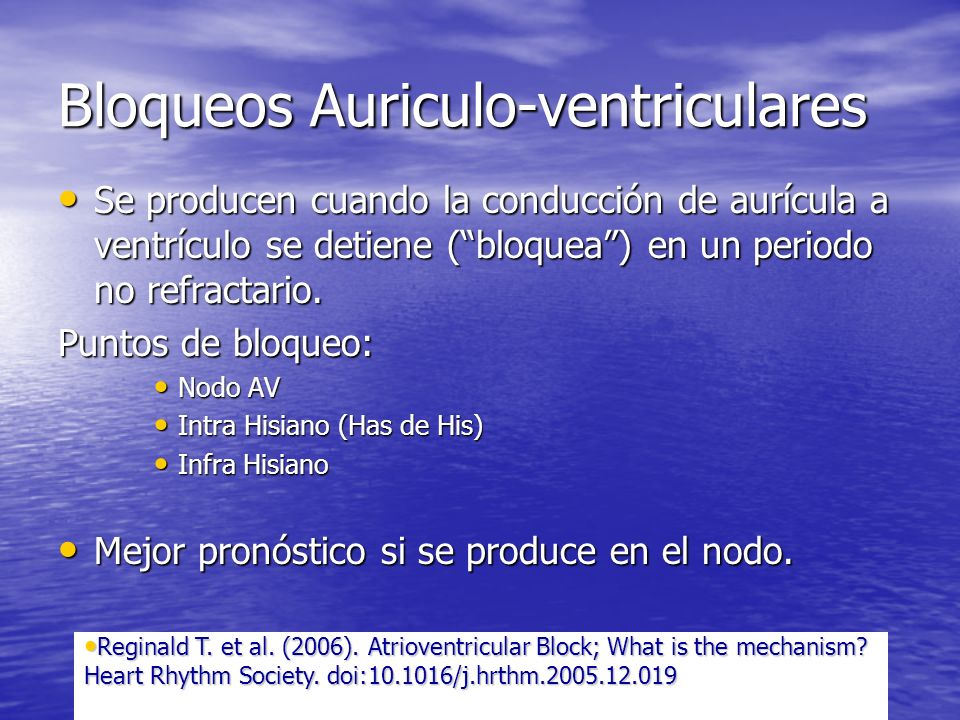 Bloqueos Auriculo-ventriculares