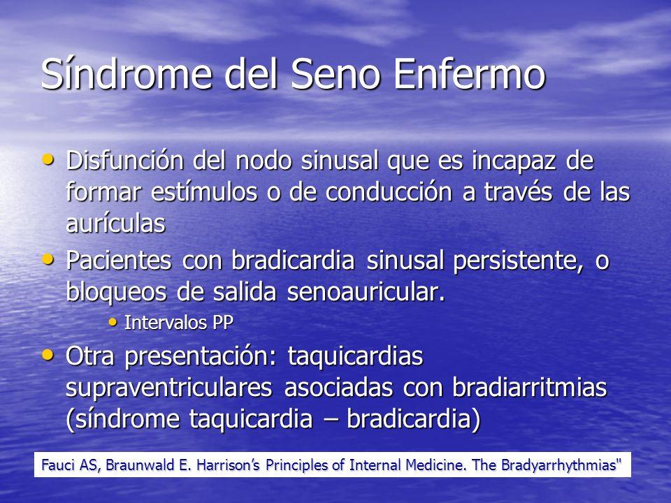 Síndrome del Seno Enfermo