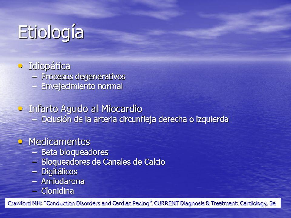 Etiología Idiopática Infarto Agudo al Miocardio Medicamentos