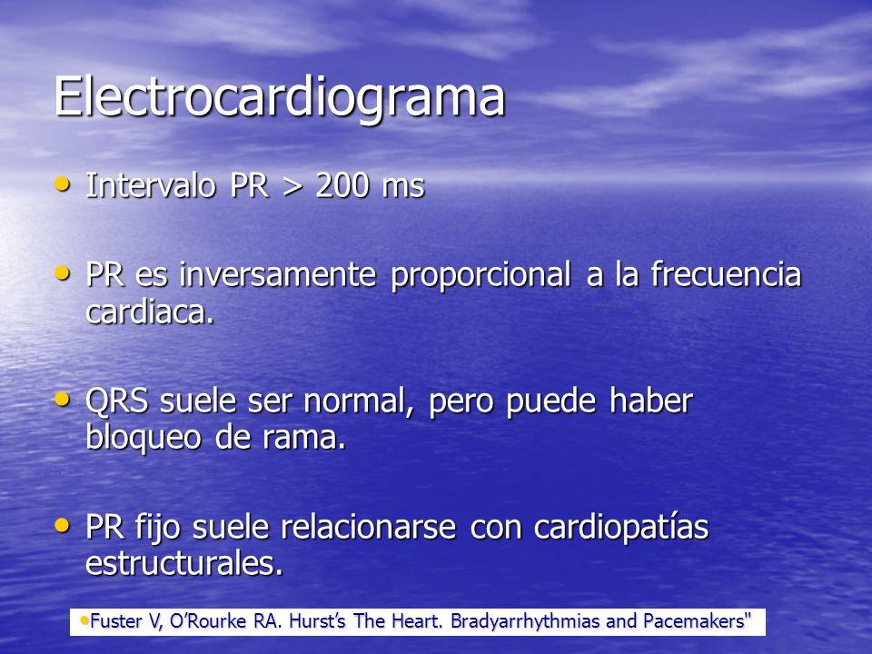 Electrocardiograma Intervalo PR > 200 ms