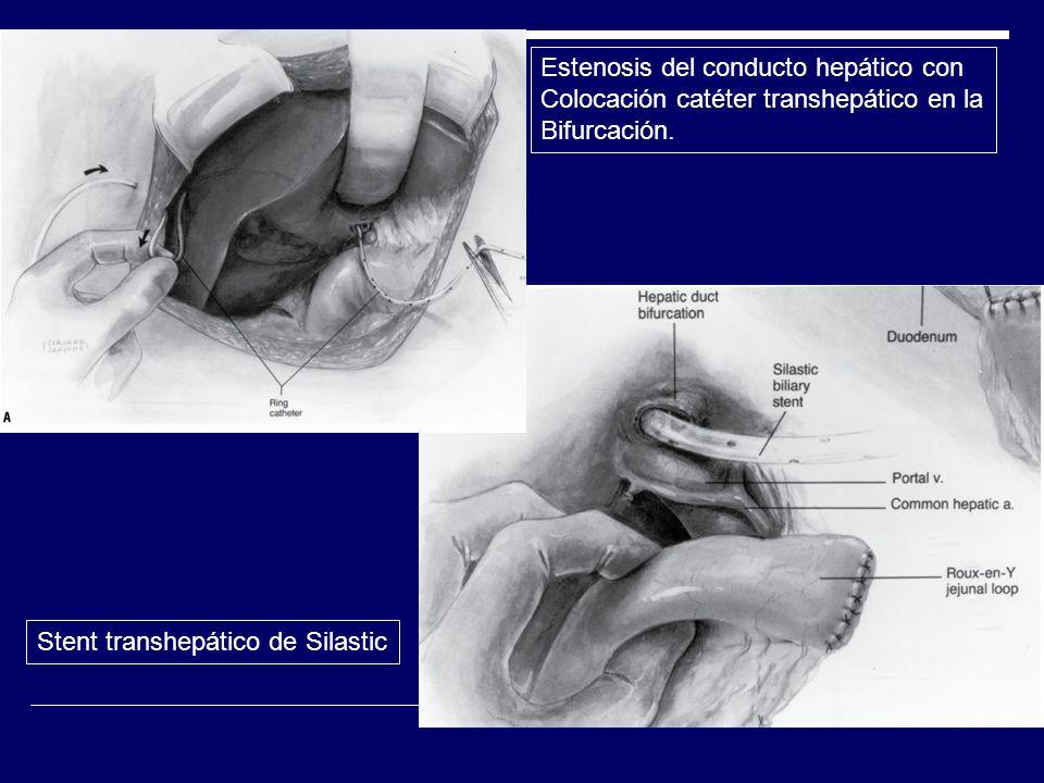 Estenosis del conducto hepático con